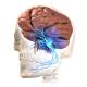 What is Trigeminal Neuralgia (TN) aka Tic Douloureux