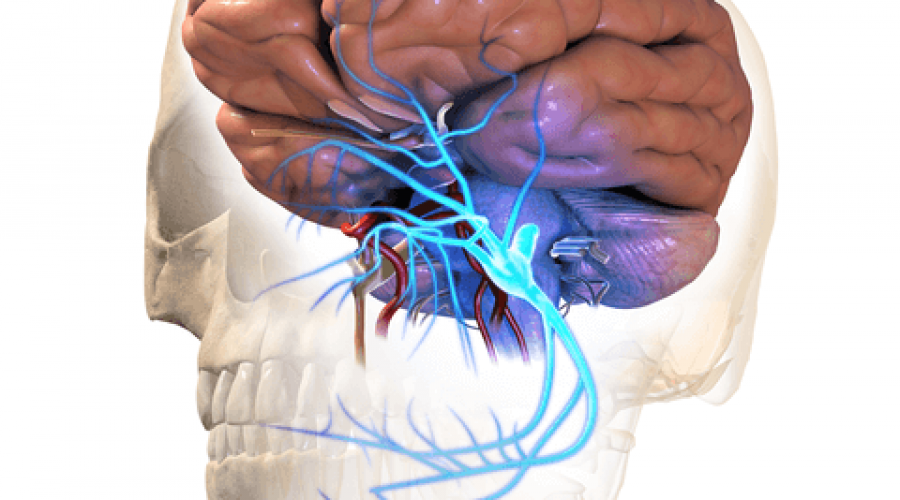 What is Trigeminal Neuralgia (TN) aka Tic Douloureux